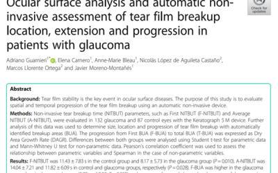 Analyse de la surface oculaire et évaluation non invasive de la rupture du film lacrymal (BUT) chez les patients atteints de glaucome.